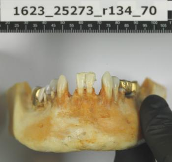 The teeth of the woman found in the Ice Valley are well preserved.