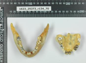 Quite some work had been done on the teeth of the woman found in the Ice Valley, among other things, a few gold bridges not typical of Norwegian dental treatment.