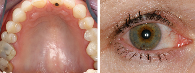 Close-up of a very dry palate to the left and close-up of a dry and irritated eye to the right.