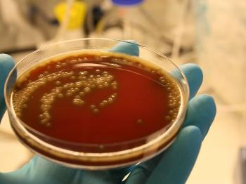 Photo of a tray with streptococcus pneuoniae bacteria held up by a hand with blue plastic gloves