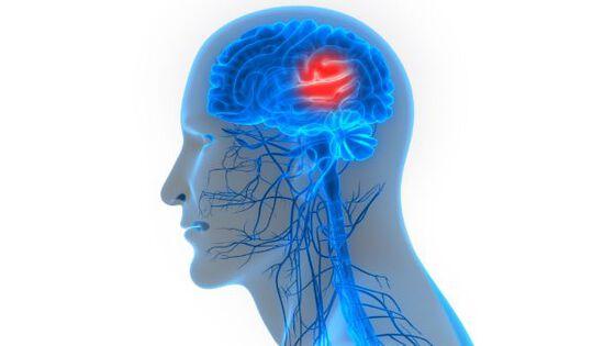 Figur, Menneske, Vondt i et område i hodet. Hjerneslag